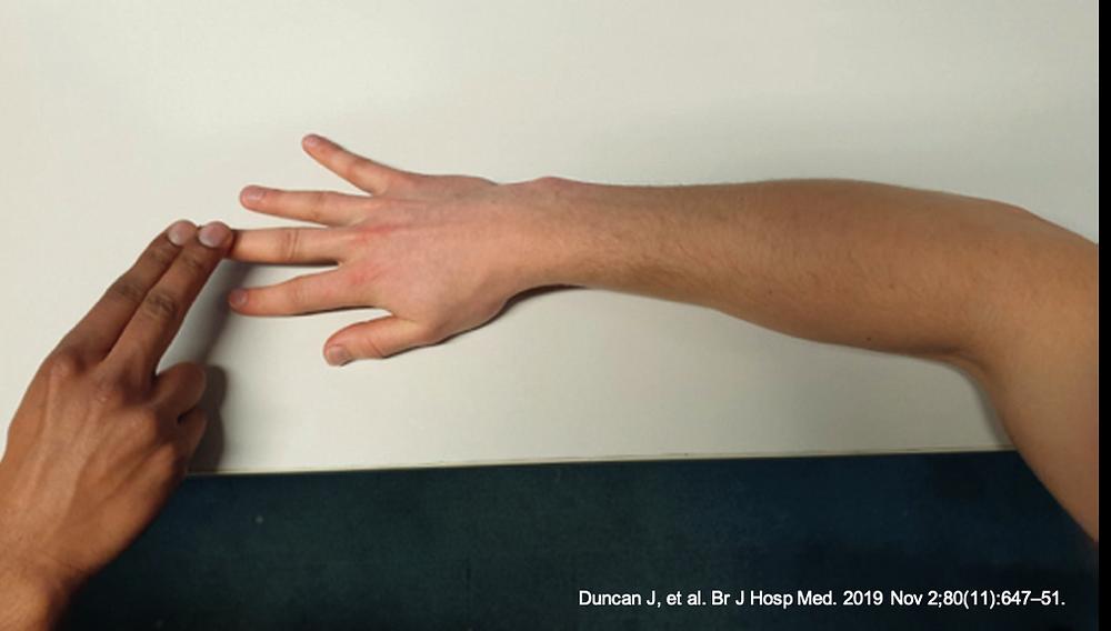 """Teste de Maudsley para o diagnóstico da epicondilite lateral do cotovelo (""""tennis elbow / cotovelo do tenista"""")"""