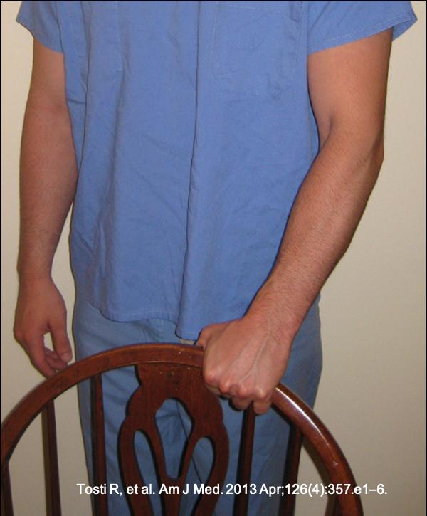 Teste do levantamento da cadeira com antebraço em pronação, dor na face lateral do cotovelo devido a epicondilite lateral