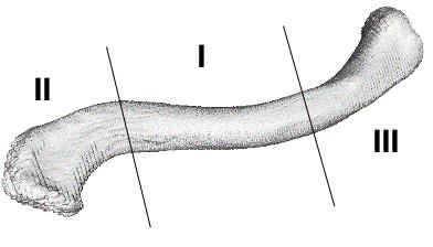 Classificação de Allman para a fraturas da clavícula - as fraturas do terço médio (tipo I) representam 80% dos casos.