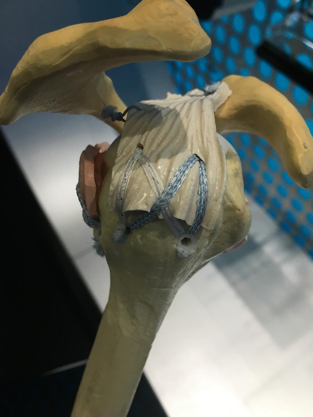 """Demonstração de reparo cirúrgico do manguito rotador: os tendões são reinseridos ao osso com """"âncoras"""" de fixação"""