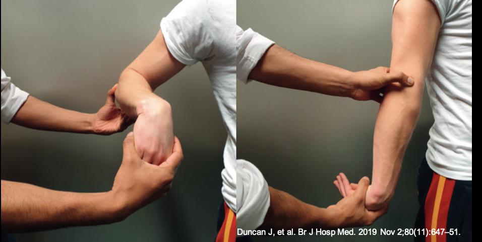 """Teste de Mill para o diagnóstico da epicondilite lateral do cotovelo (""""tennis elbow / cotovelo do tenista"""")"""