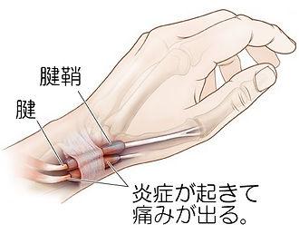 堺市堺区の坂東接骨院です。成長痛やスポーツによるオスグッド、野球・テニス肘、使いすぎによる手の痛み、加齢による痛みヒザの痛みを超音波(エコー)検査やレントゲンなどで確認しながら治療を行います。
