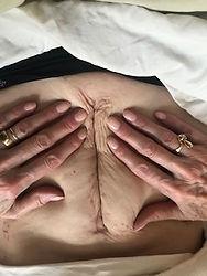 mb ab scar