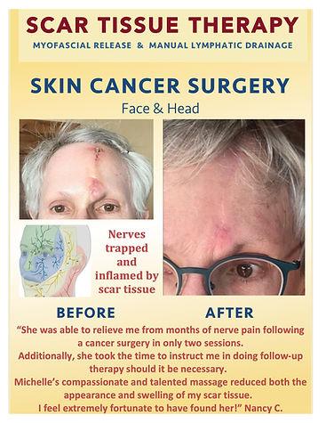 Face scar.jpg