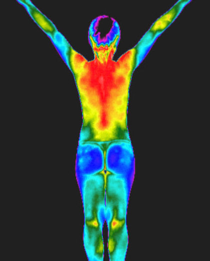 Thermography, Thermogram, Infrared Imaging