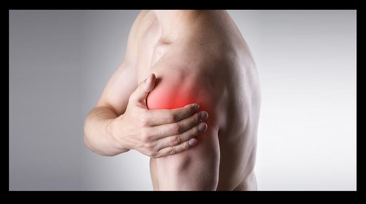 דיקור סיני לכאבים ודלקות בכתף
