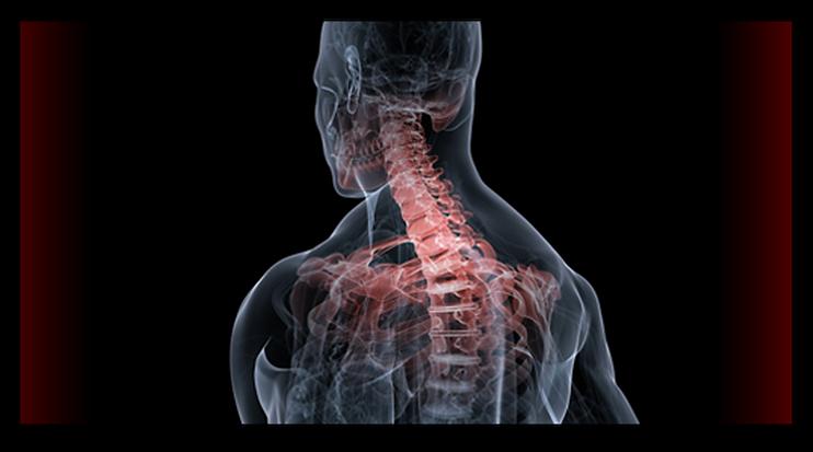 דיקור סיני לכאבי גב, היצרות בעמוד ד השדרה ורפואה סינית לכאבים