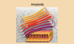 _Amyloid proteins_white2