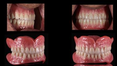 Full Dentures DSD 2.029.jpeg