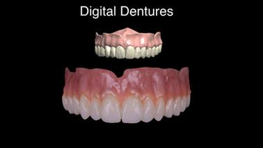 Digital Denture.001.jpeg