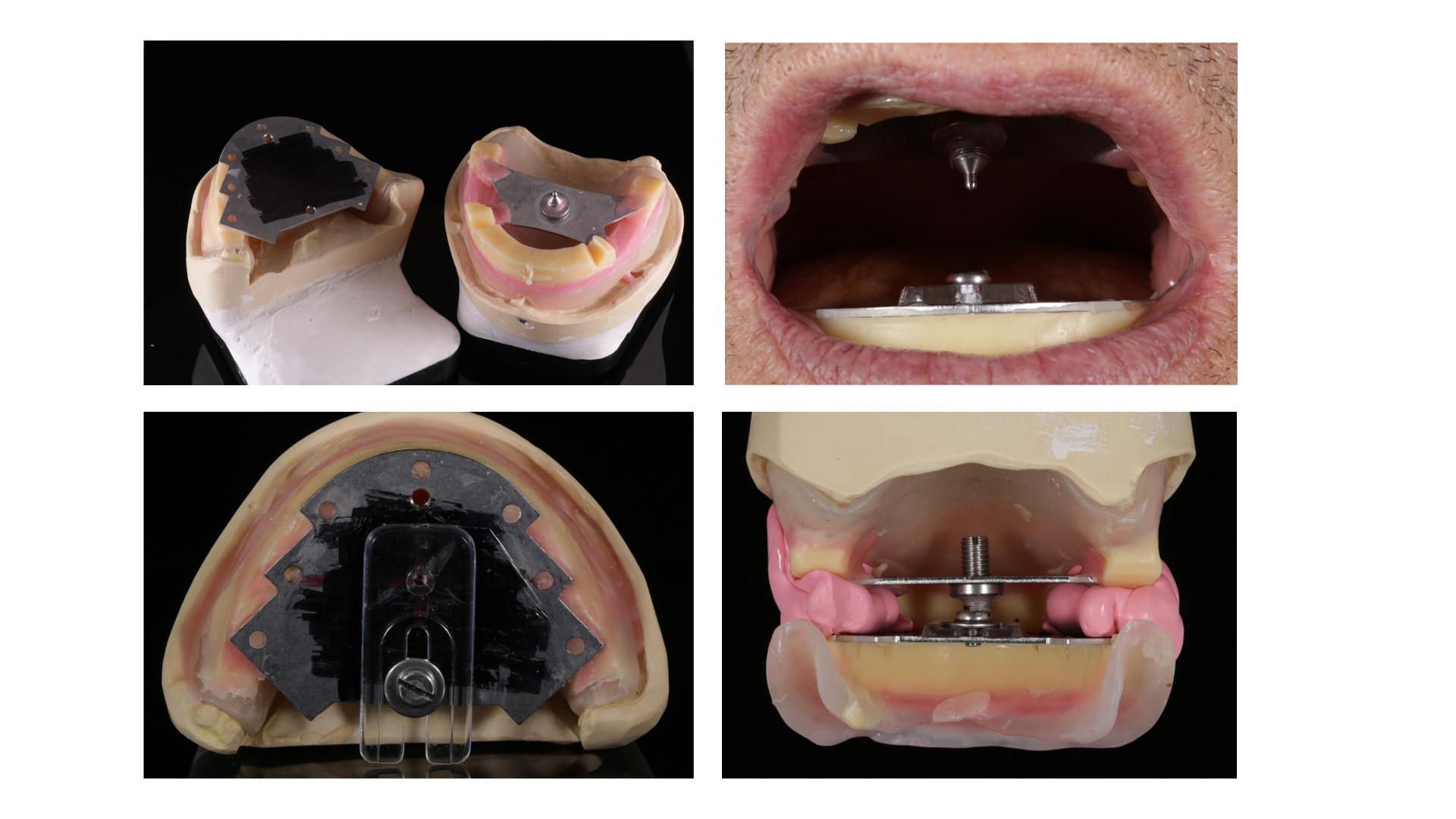 Full Dentures DSD 2.018.jpeg
