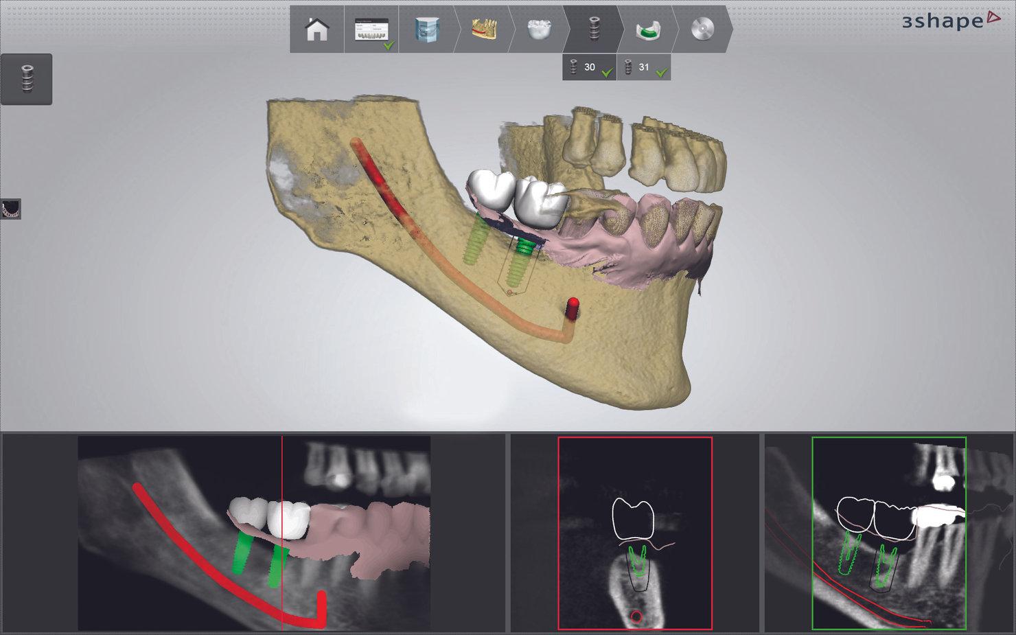 3Shape_Implant_studio_3.jpg