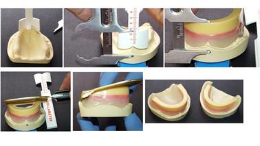 Full Dentures DSD 2.015.jpeg