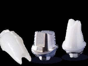inclusive-custom-implant-abutments.png