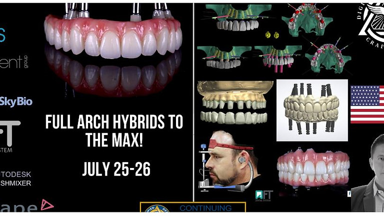 Master Specialty Program BSB -Full Arch Hybrids to the MAX!