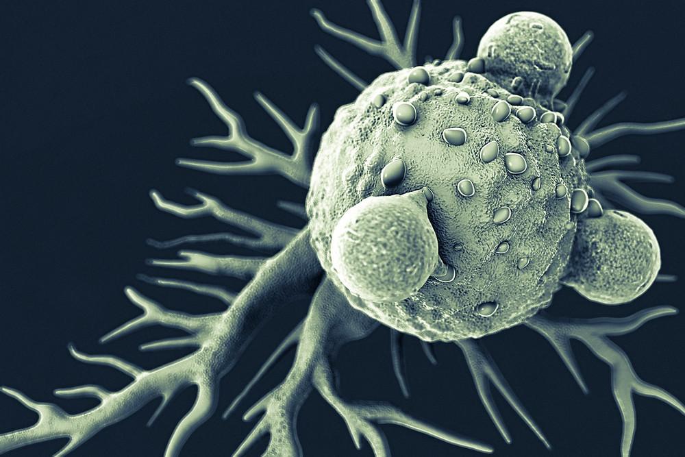 Comment améliorer son systeme immunitaire en naturopathie - lyon