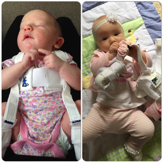 Our Journey With Hip Dysplasia