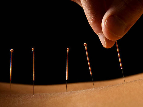 Combining Massage and Acupuncture
