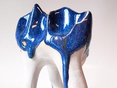 Slip-casted porcelain, reduction, 2018.