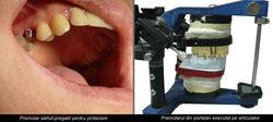 Corona Ceramica+Pivot premolari