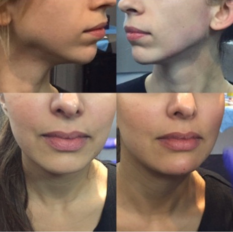 Before and After Jaw and Chin Augmentation