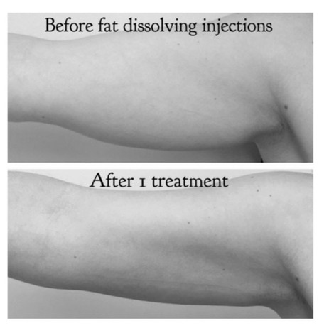 Before and After  before and after fat dissolving