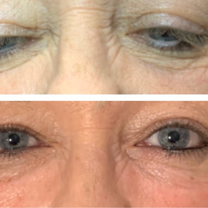 Before and After specialist tear trough correction