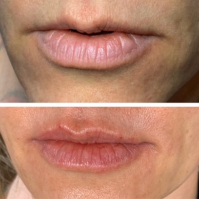 Before and After Lip Augmentation