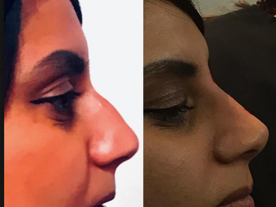 Before and After 15 Min Nose Job