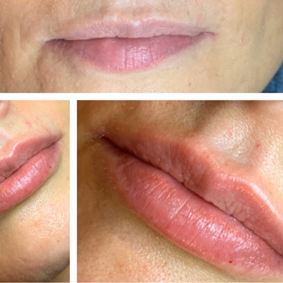 Before and After Lip Correction