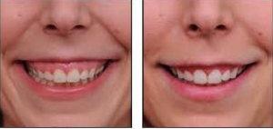 Botulinum Treatment To Prevent a gummy smile