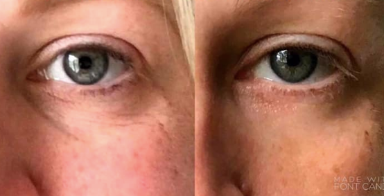 Eye Trough Treatment