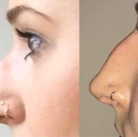 Before and After Non-Surgical Rhinoplasty
