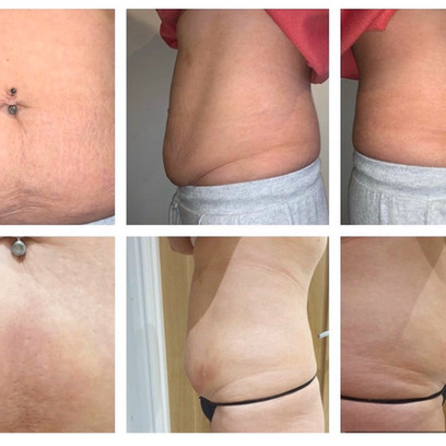 Before and After Intra-Lipotherapy (fat dissolving)