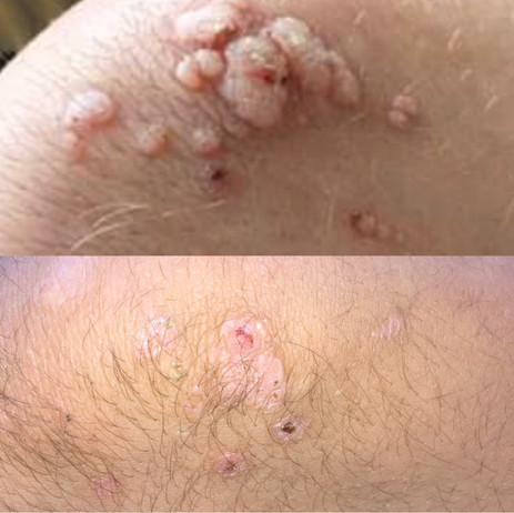 Before and After Wart Removal