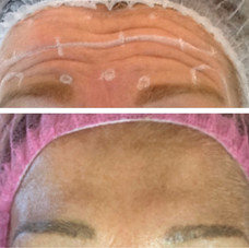 Before and After Wrinkle management