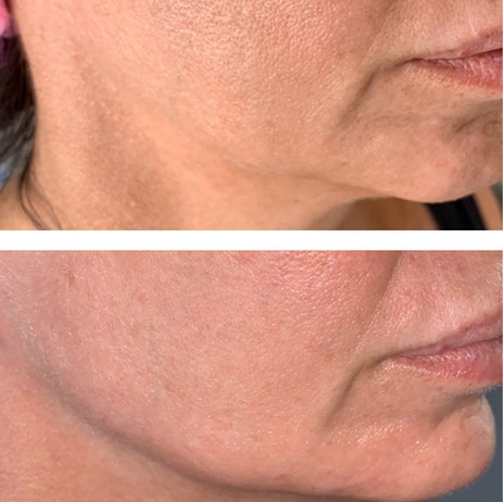Before and After jaw, cheek and chin Profile Balancing
