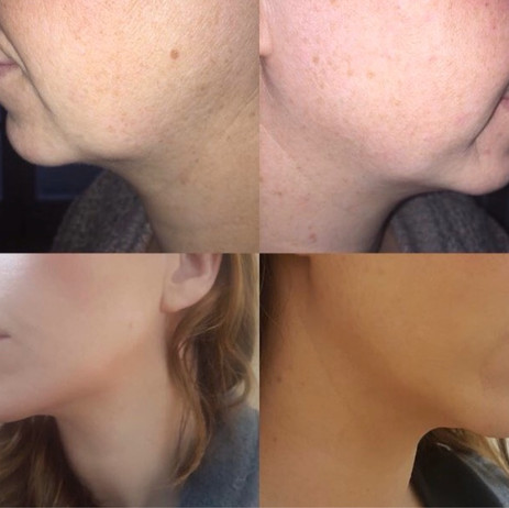 Before and After Jaw, Cheek and Chin Augmentation