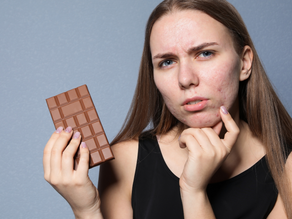 Does Eating Chocolate Make You Break Out?