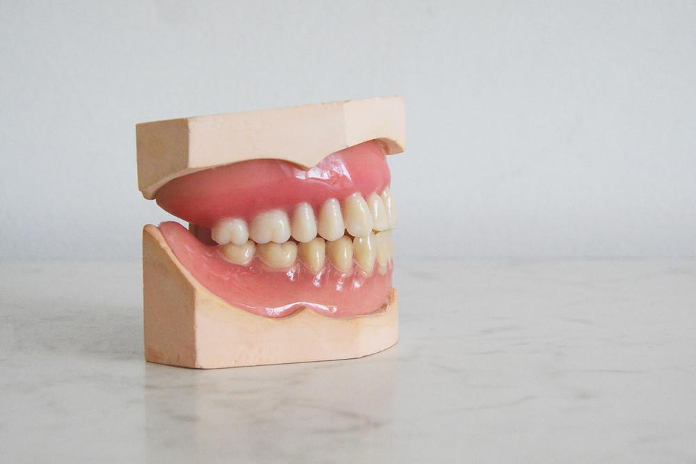 čelist, porcelanove zuby