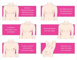 Γενικός Χειρουργός Δημήτριος Γκιουζέλης -  Χειρουργική Αντιμετώπιση του Καρκίνου του Μαστού