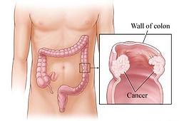 Γενικός Χειρουργός Δημήτριος Γκιουζέλης -  Χειρουργική Αντιμετώπιση του Καρκίνου του Παχέος Εντέρου