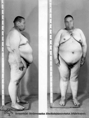 Patientfoto från Vipeholms sjukhus - Kanske en patient med Laurence-Moon-Biedl-Bardets syndrom?