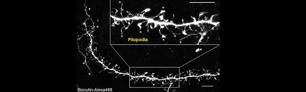 filopodia MIA.tif