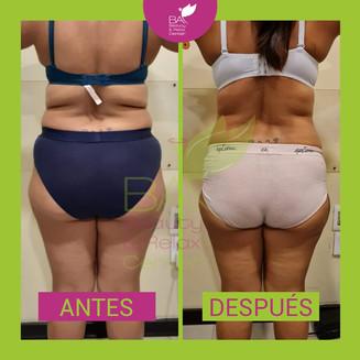 antes y después 1.jpg