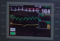 Electro Cardiography