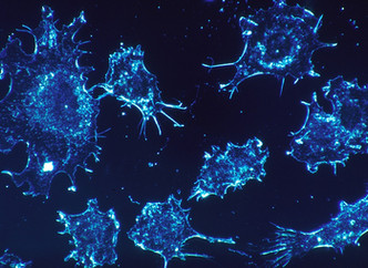Immunotherapy Product Receives U.S. FDA Breakthrough Device Designation for the Treatment of Cancer