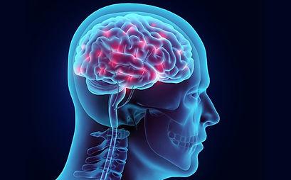 stroke-brain_1.jpg