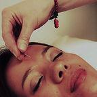 Vale- acupuncture.jpg