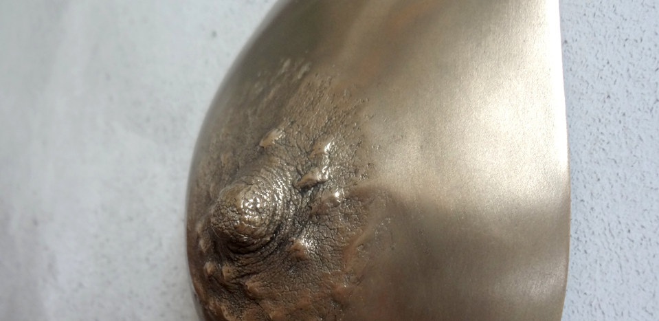 Polished Bronze Breast Casting Pre Mastectomy body casting Manchester & London